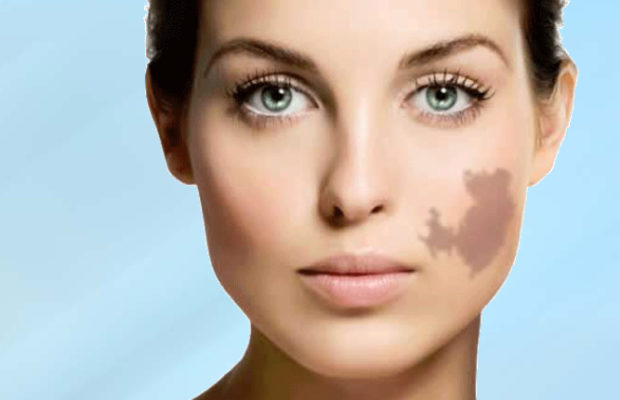 Birthmark Removal Natural Remedies To Try At Home